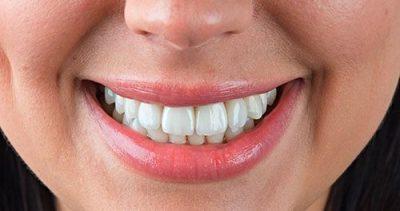perednie-zubi